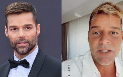 Ricky Martin afirma en sus redes que no se hizo «retoques» en su rostro