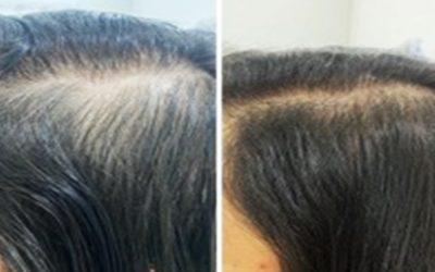 5 recomendaciones para evitar la caída de cabello